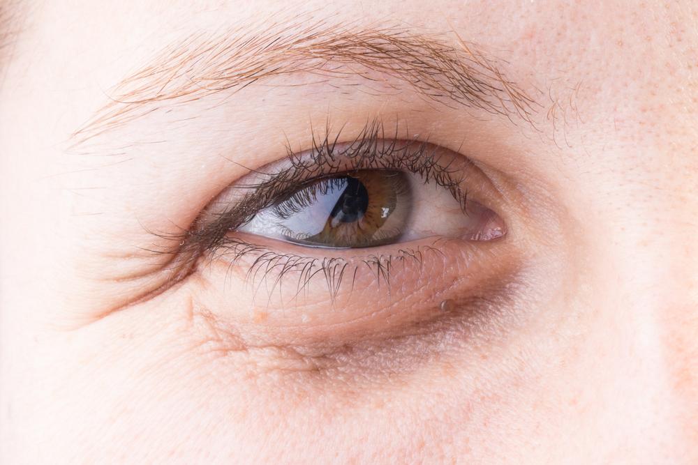 Sötét karika a szem alatt